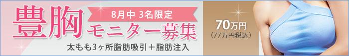 豊胸手術の値段(費用・料金)、モニター募集